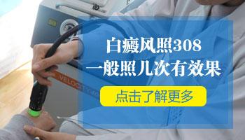 白癜风用308激光治疗需要多久见效